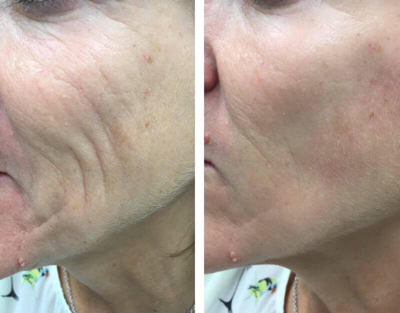 Cheek, Chin and Jaw Reshaping | Cheek Fillers | Skin Sense